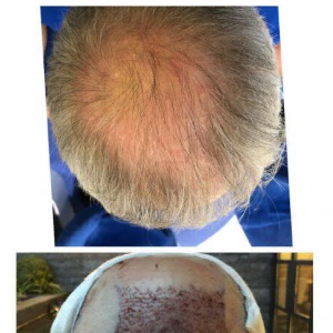 Before and after hair transplant: a real patient's photo