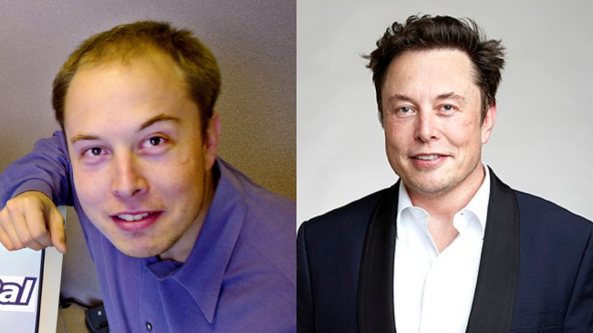 Photo of Elon Musk before and after hair transplant