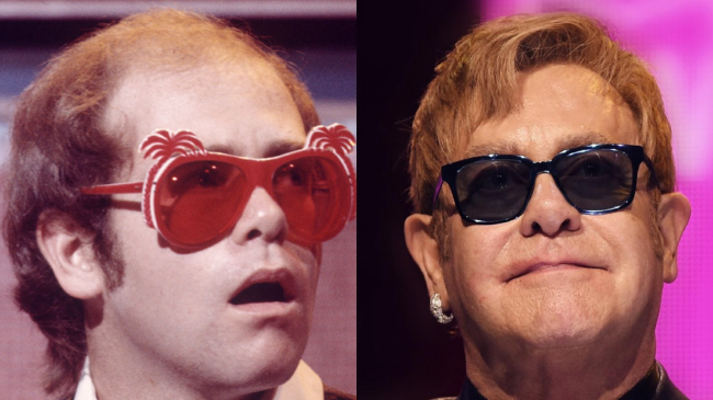 Elton John before and after hair transplant