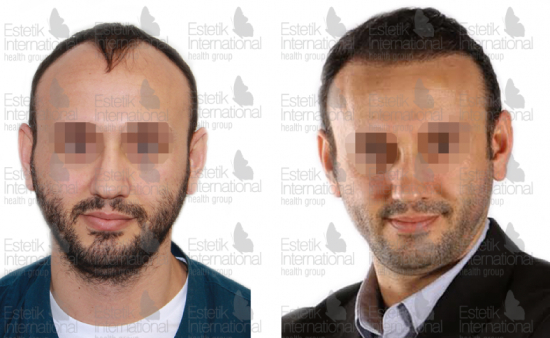 Before and after organic FUE hair transplant