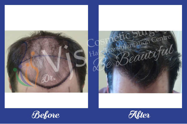 Before & after hair transplant photos