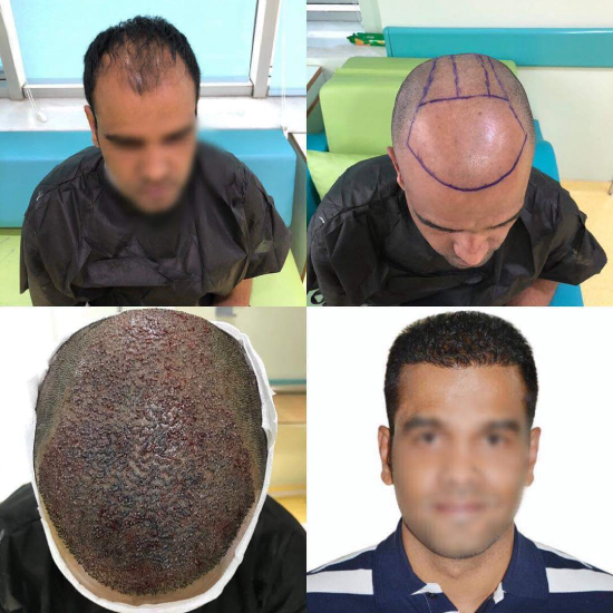 Preparation for hair transplant, a photo just right after follicles implantation, and the final result
