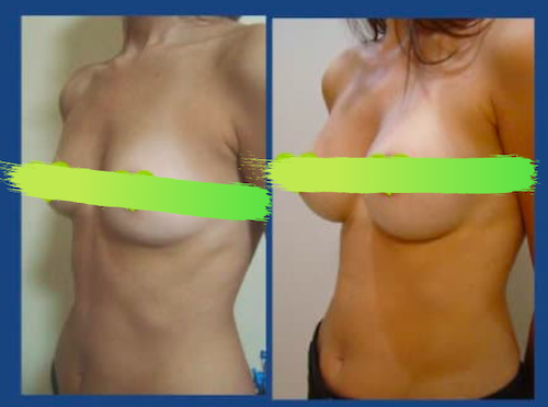 Before and after photos of breast augmentation at Istanbul Aesthetics