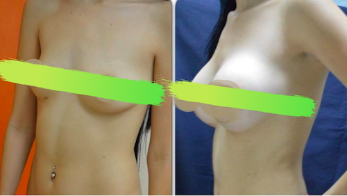 Photos before and after breast enlargement at Dr Meza Center