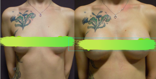 Before and after photos of boob job Forme