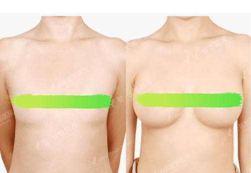Before and after photos of breast enhancement View