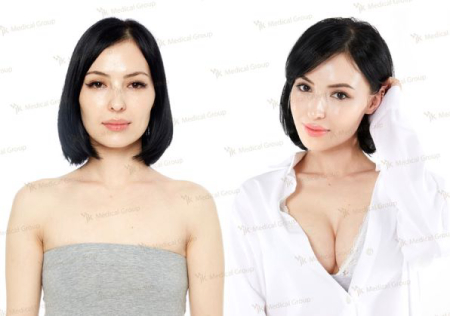 Before and after pictures of boob job JK
