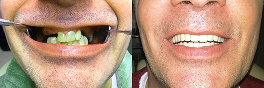 Cheapest dental implantation in Hungary