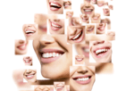 Best countries for dental implantation
