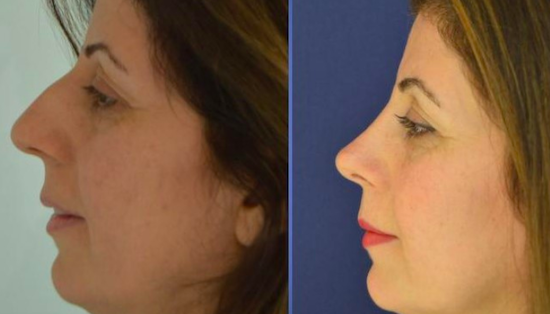 Before and after rhinoplasty photos at Istanbul Aesthetics Plastic Surgery Center