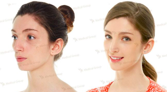 Before and after photos of rhinoplasty at JK