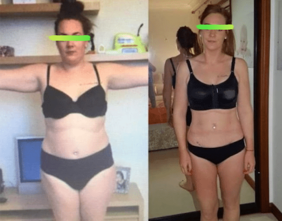 Before and after photos of liposuction KCM Clinic